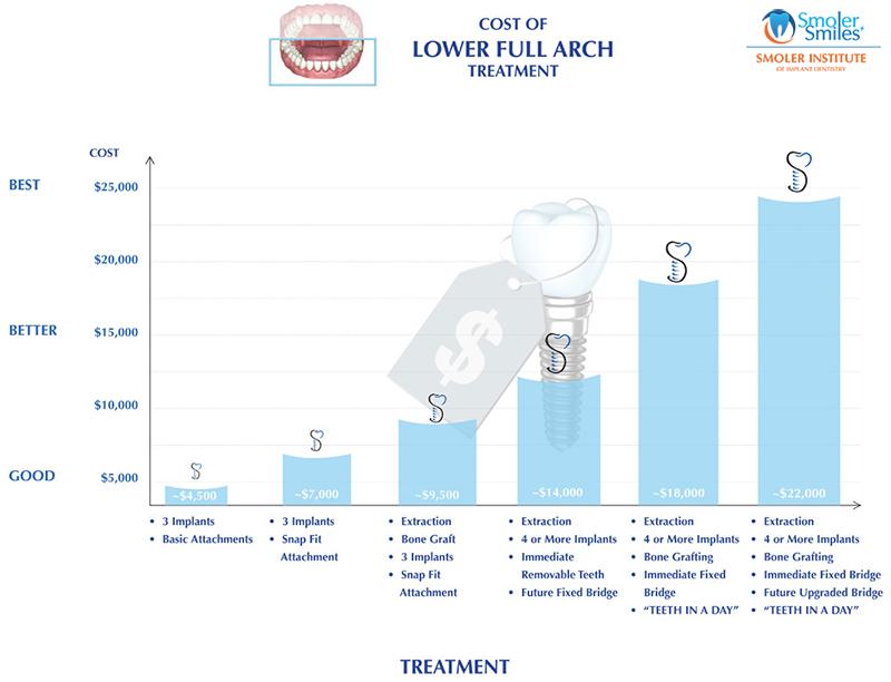 Lower Full Arch Treatment