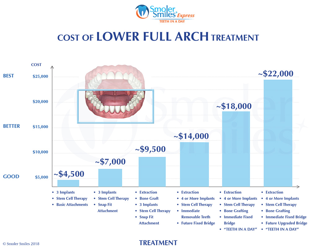 Lower Full Arch Implant Treatment