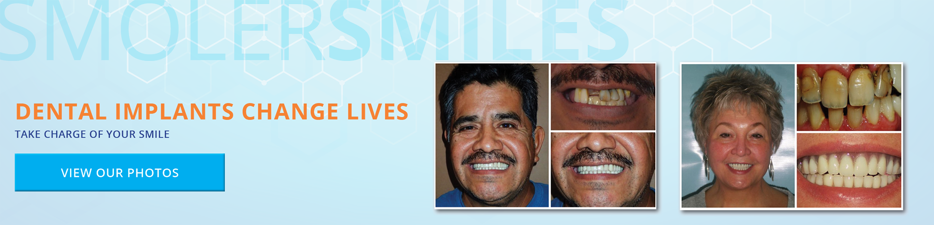 Dental Implants Change Lives